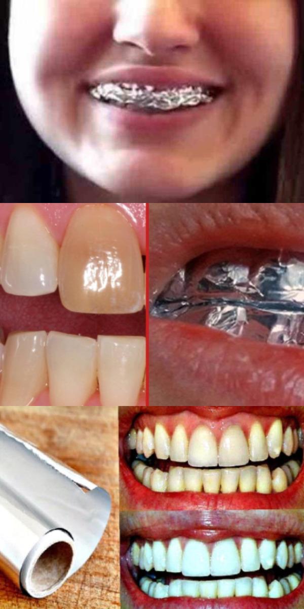 Только взгляните, что произойдет, если обернуть зубы в обычную фольгу. Результат ошеломляет