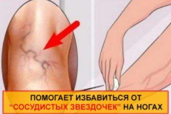 Уничтожаем «СОСУДИСТЫЕ ЗВЕЗДОЧКИ» на ногах без операций и лекарств!