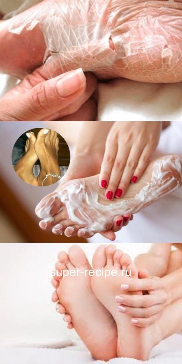 Домашнее средство, которое устраняет мозоли и грибок ног в течение 2 дней. Попробуйте.Легко и просто!