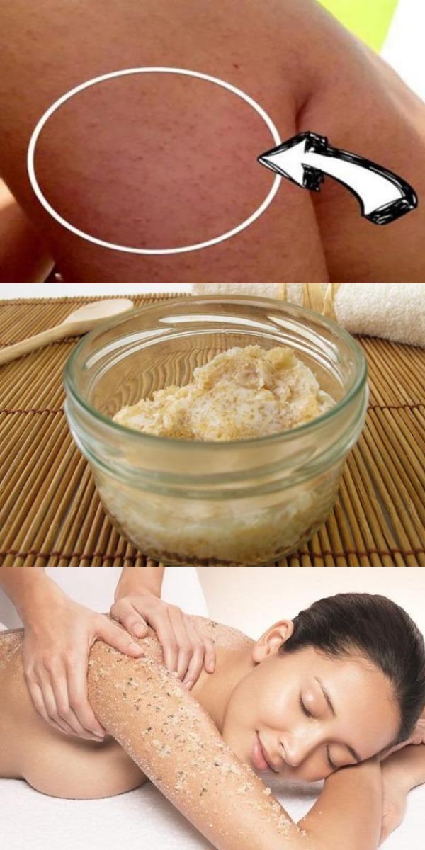 Делаем свою кожу чище! Все, что вам нужно знать о раздражающих прыщах на руках, бедрах и ягодицах