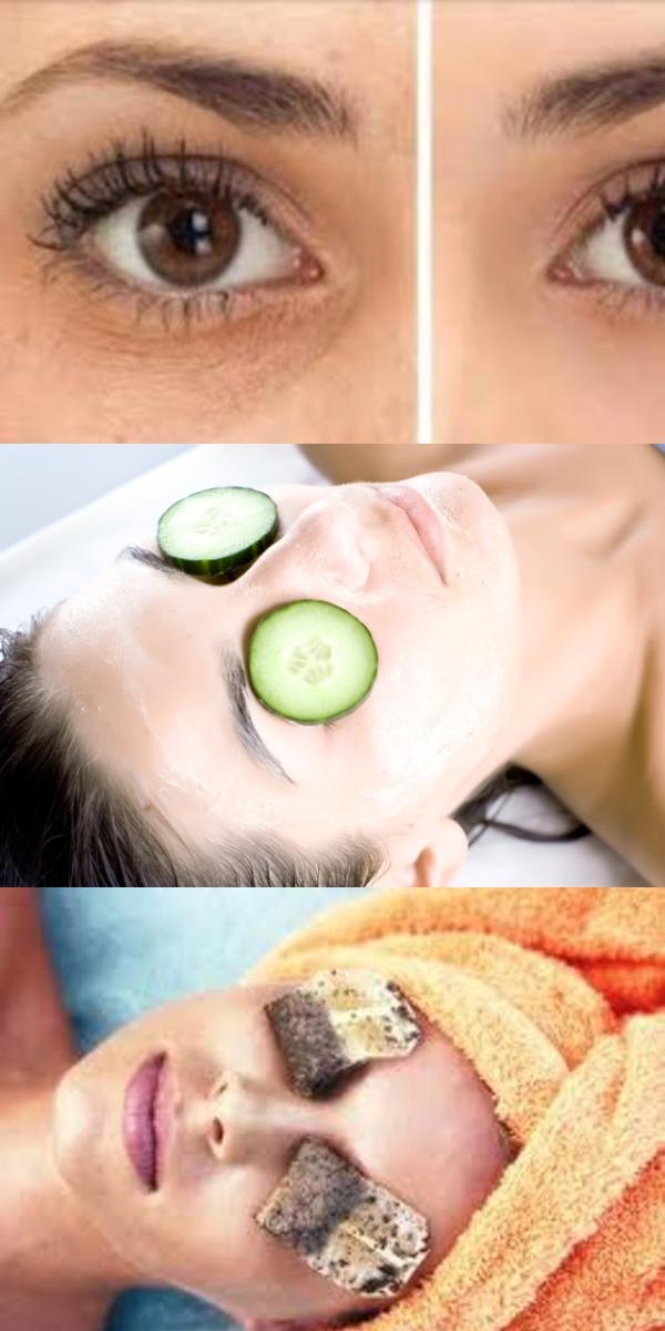 Вот 5 способов убрать синяки, отёки и мешки под глазами. И никакой химии!