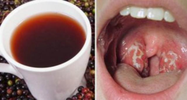 Врач поделилась советом как избавиться от инфекции горла всего за 4 часа!