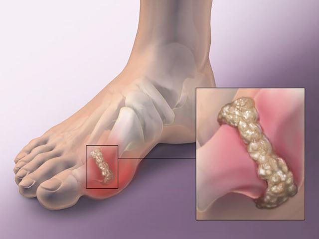 Как удалить мочевые кислоты из суставов и избежать подагры и опухолей!
